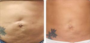 accent abdomen BA flacidez-celulitis